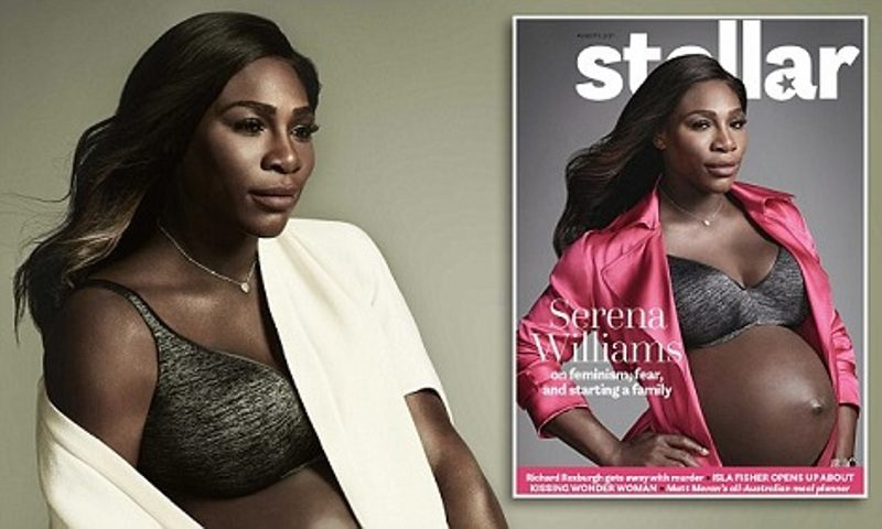 Serena Williams [Stellar]